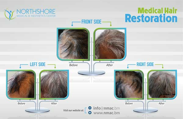 Hair-Treatments-01A-updated